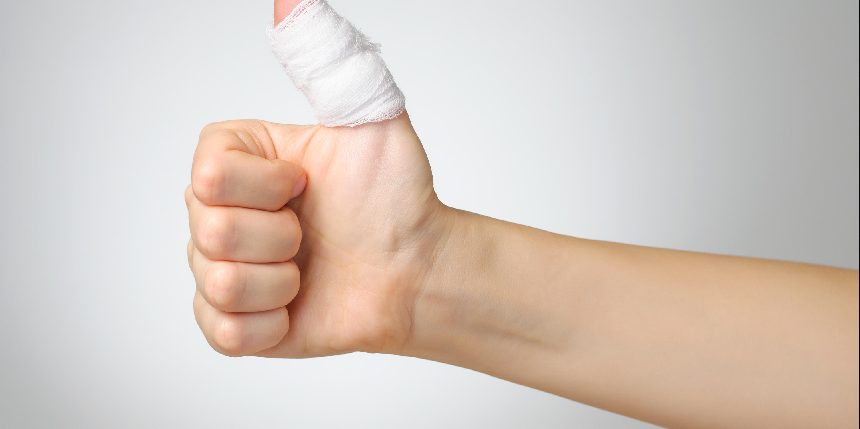 Amputation : conduite à suivre face au blessé et au membre sectionné !