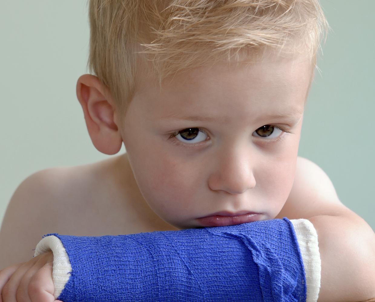 Que faire face à un membre fracturé ?